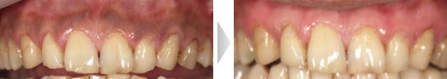 歯茎ピーリングの写真