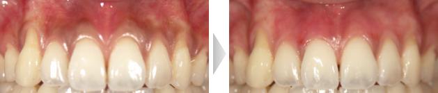 歯茎のホワイトニングの写真